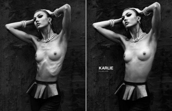 Moda Anoressia Fenomeno Sociale Esagerazione Modelle Scheletriche Karlie Kloss